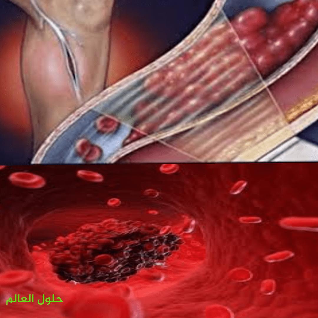 تعريف الجلطة Blood clot